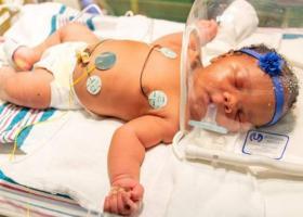 ΗΠΑ: Κοριτσάκι γεννήθηκε στην επέτειο της 9/11, στις 9:11 πμ και ζύγιζε 9,11 λίβρες - Κεντρική Εικόνα
