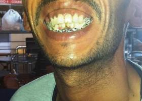 Ζήτησε τα δεδουλευμένα, αλλά ο εργοδότης του έσπασε δόντια και σαγόνι - Τώρα χρωστάει και 1.553 ευρώ! - Κεντρική Εικόνα