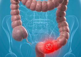 Στοιχεία-σοκ δείχνουν ραγδαία αύξηση κρουσμάτων καρκίνου του εντέρου σε άτομα 20-29 ετών - Κεντρική Εικόνα