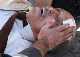 Αστυνομικός των ΜΑΤ τραυμάτισε ηλικιωμένο στην Ευελπίδων (φωτο) - Κεντρική Εικόνα