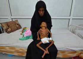 """Ο Πάπας Φραγκίσκος παρακολουθεί την κρίση στην Υεμένη """"με μεγάλη ανησυχία"""" - Κεντρική Εικόνα"""