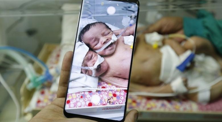 Συρία: Πέθαναν τα σιαμαία βρέφη που νοσηλεύονταν σε νοσοκομείο της Υεμένης - Κεντρική Εικόνα